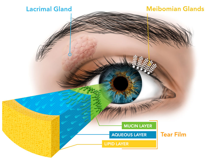 lacrimal gland shown in area between nose by upper eyelid - while Meibomian glads are in the eye lids; the image also shows the three layers of the tear film: Mucin layer in green, aqueous layer in blue and lipid layer in baby puke yellow