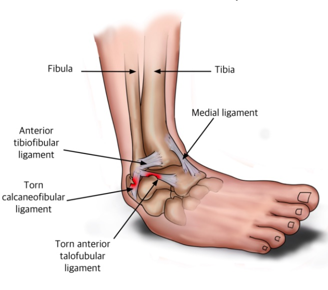 Deep Tissue Massage for Injury: Ankle Sprains