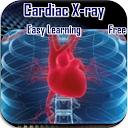 Cardiac X-rays APK