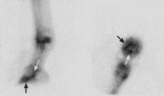T1-weighted images showing a split in the DDFT.