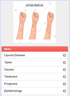 Lipoma Solution Disease - náhled