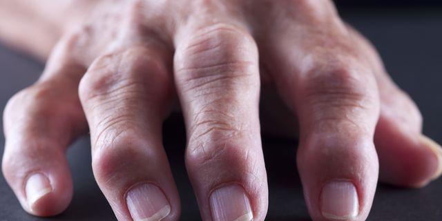 Swollen Fingers causes