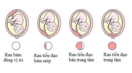 Hiện tượng nhau thai bám thấp có nguy hiểm cho mẹ và con không