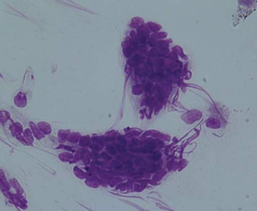 Generally, epithelial cells are the only type of cell seen during examination of an endometrial smear of a normal mare
