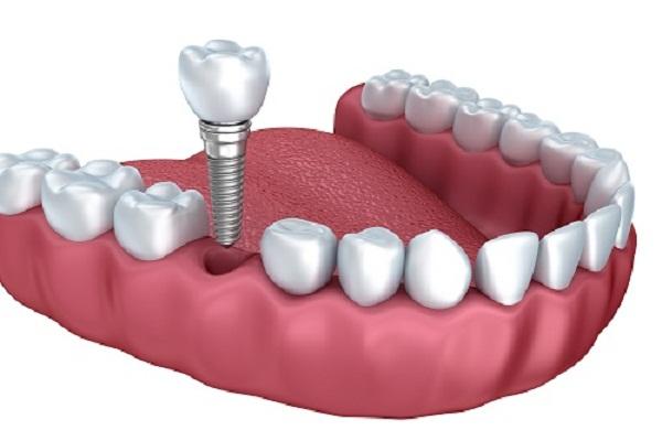 Cấy ghép implant mất bao lâu? Trung tâm implant công nghệ cao 1