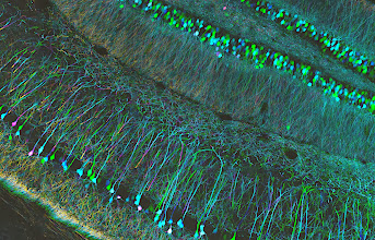 Photo: Layers of cell bodies and branches in the hippocampus, a part of the brain that plays a role in learning and memory.  Depth coded projection (colour) image of mouse hippocampus sections  Sample courtesy of Yi Zuo, Molecular, Cell and Developmental Biology (MCDB) Department, University of California Santa Cruz.  Source: http://www.flickr.com/photos/zeissmicro/10799673016/
