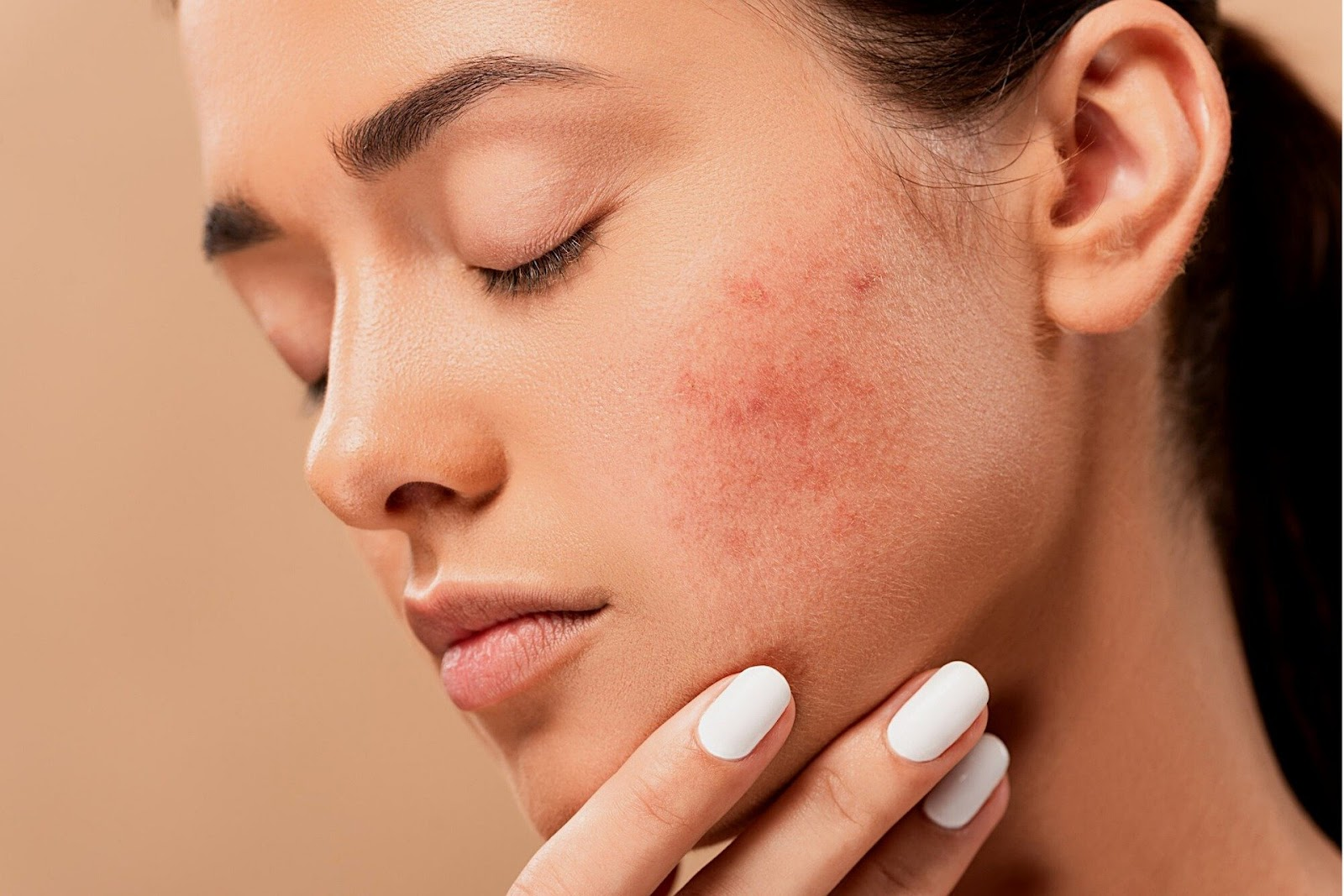 Copper Peptide Serum for Acne Scars: A Detailed Summary 3