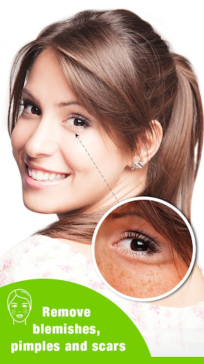 Image of Face Enhancer - Photo Face Blemishes Remover 1.1 2