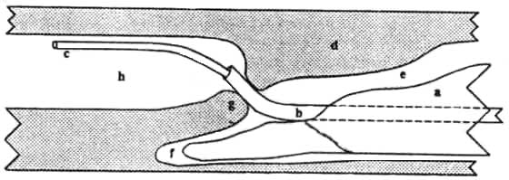 The outer vaginal catheter