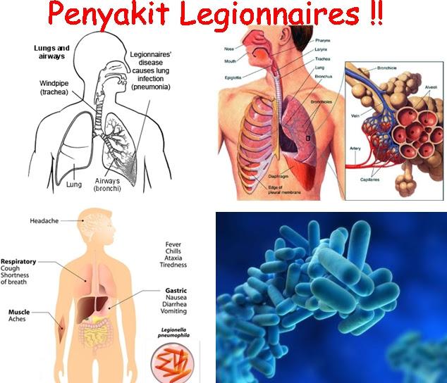 Cara Menyembuhkan Penyakit Legionnaires
