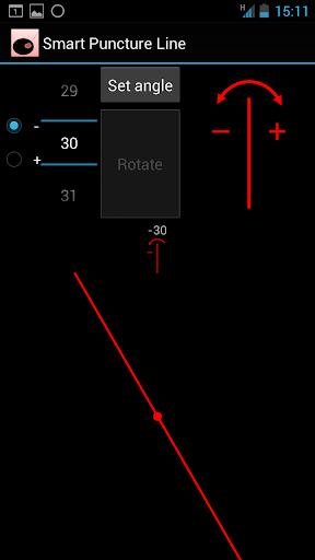 Smart Puncture Line