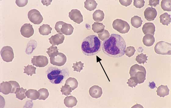 Immature neutrophils. A band (arrow) and metameclocyte are located in the center. A normal segmented neutrophil is located in the lower left (100x).