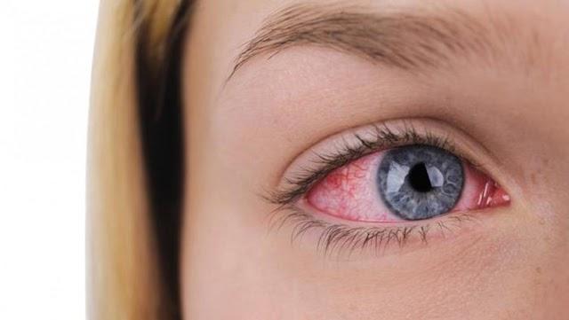 La fatiga visual también aparece cuando se ha realizado una actividad que exige cambios acomodativos constantes.
