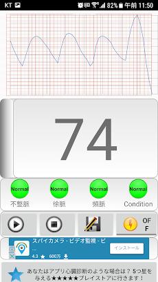 心臓 診断(不整脈)のおすすめ画像4