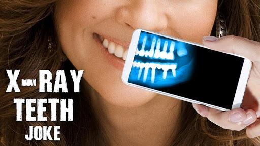 X線歯のジョーク