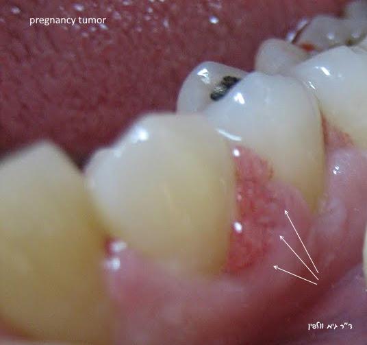 """בעיות שיניים ודלקות חניכיים בהריון - ד""""ר גיא וולפין - pregnancy tumor"""