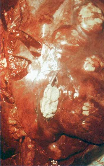 Extensive abscessation in lungs of foal with rhodococcal pneumonia.