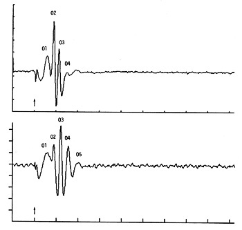 Oscillatory potentials recorded from a cat and a dog in a response to a single white stroboscopic flash after dark adaption