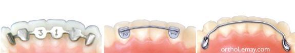 Attelles de rétention contention fixe en orthodontie