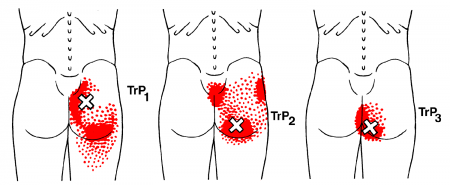 gluteal trigger points