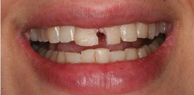 Hàn răng cửa bị mẻ có nên hay không, có tốt không?