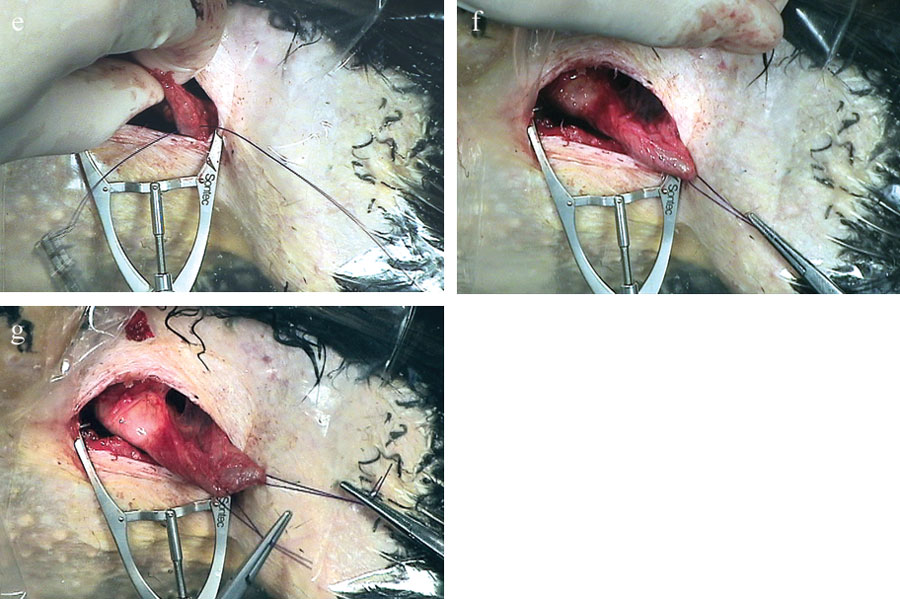 Attaching suture to the muscular tissues of the proventricular-ventricular junction and freeing the proventriculus from surrounding attachments to allow exteriorization for the organ entry