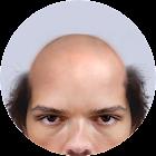 Bald Face icon
