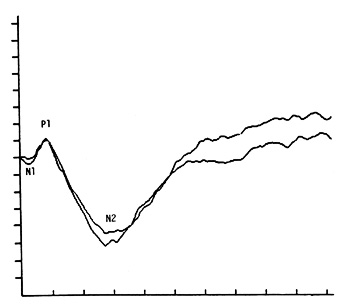 Pattern electroretinogram (PERG) recorded from a dog in response to visual stimulation with a vertical grating pattern at a spatial frequency of 0.06 cycles per degree of visual angle