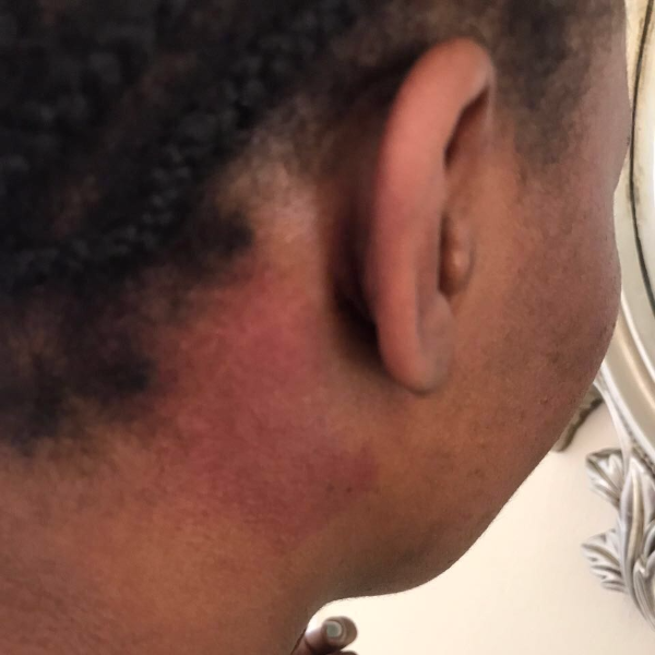 Mandisa Duma shows her bruises after the alleged altercation.