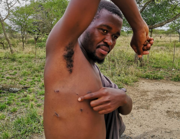 Sabelo Masondo shows the wounds inflicted on him by a lion.
