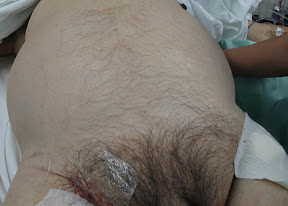 Ruptured Ovarian Cyst Bleeding