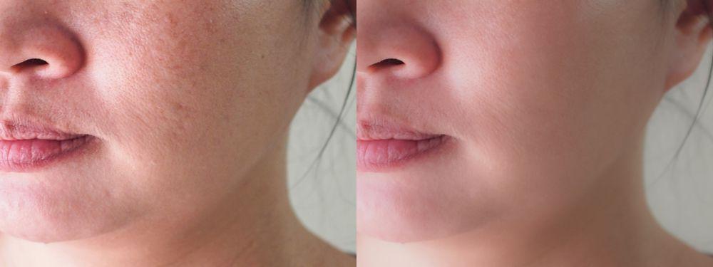 antes y después punch grafting