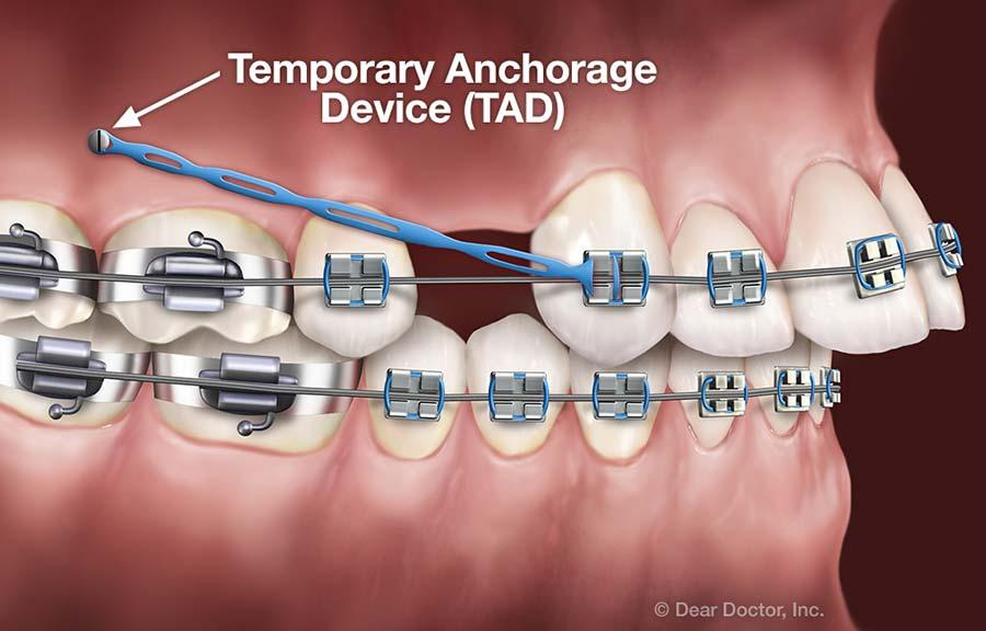 Image result for tads orthodontics
