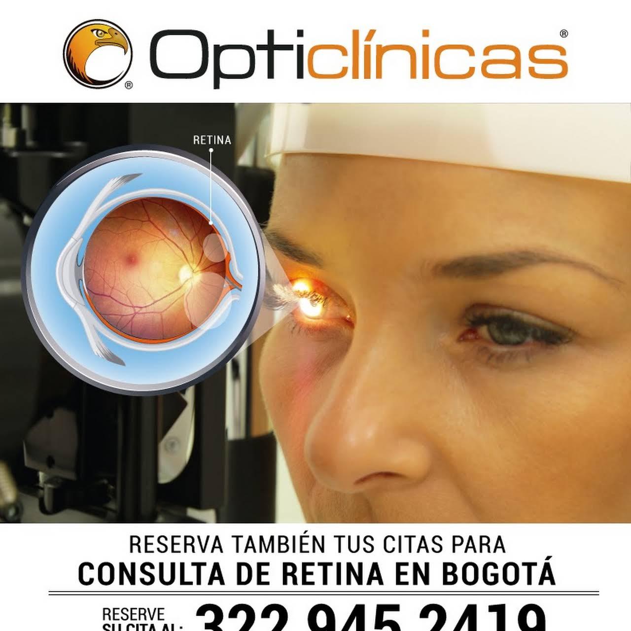 54d82d813a Opticlínicas Bogotá - Centro De Oftalmología en Bogotá