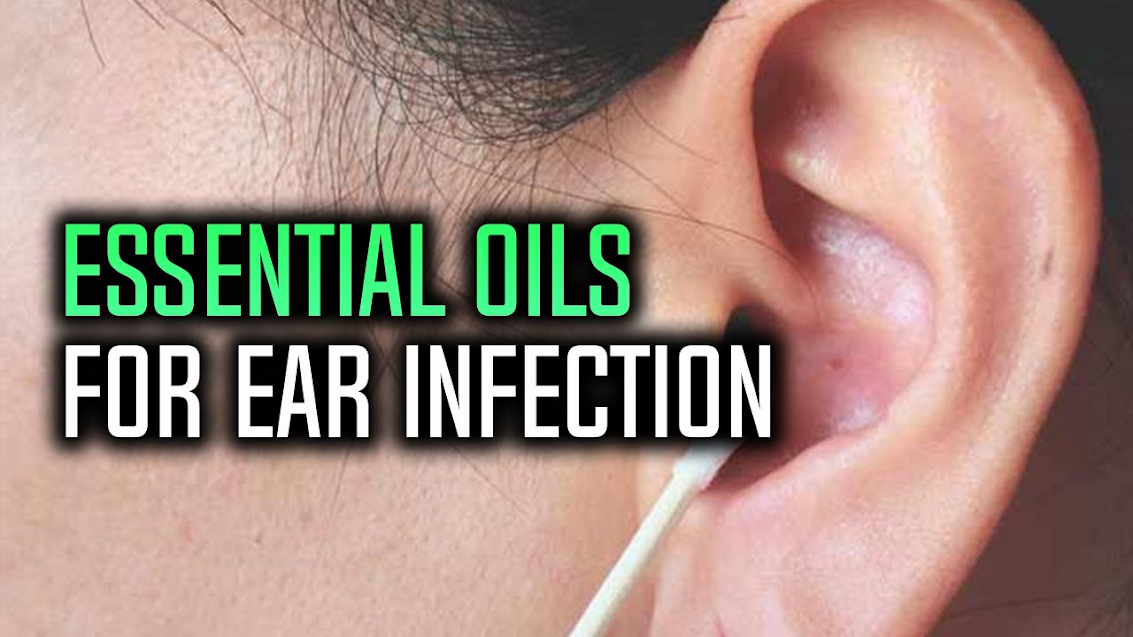 Natural oils for ear infection