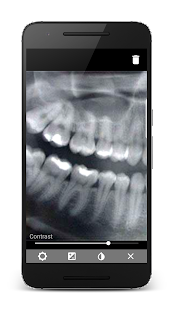 Dentem - Dental Practice Management Software- screenshot thumbnail