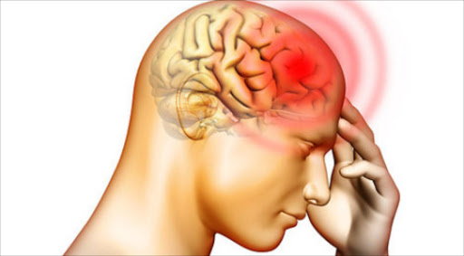 According to medical director of The Headache Clinic Dr Elliot Shevel, the Cefaly uses mild electric pulses to reduce the pain impulses going to the brain.
