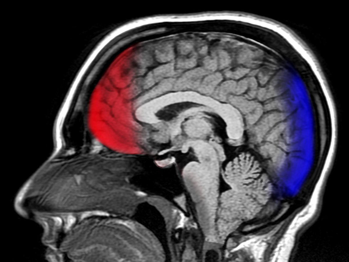 Image result for traumatic brain injury