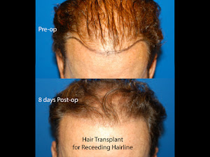 Hair Restoration Men