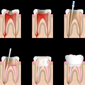 desvitalização, tratamento do canal