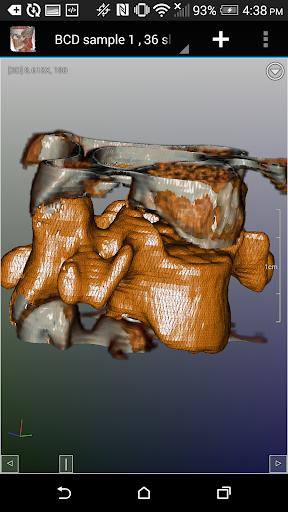 玩免費醫療APP|下載DroidRender - 3D DICOM瀏覽器 app不用錢|硬是要APP