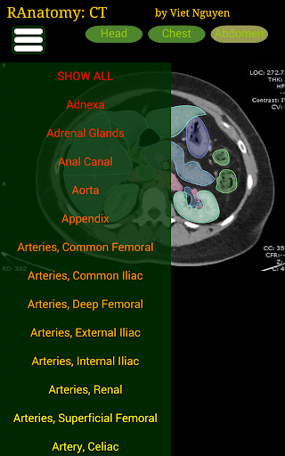 Radiology CT Anatomy  screenshots 8