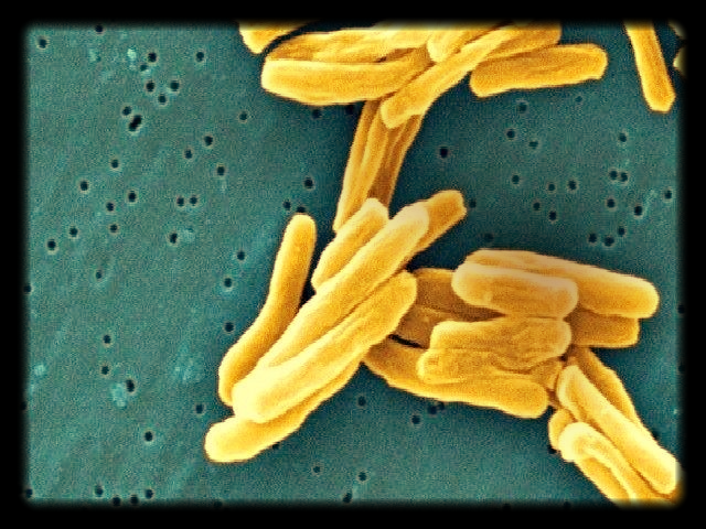 Drug resistant tuberculosis. Picture: WIKI COMMONS