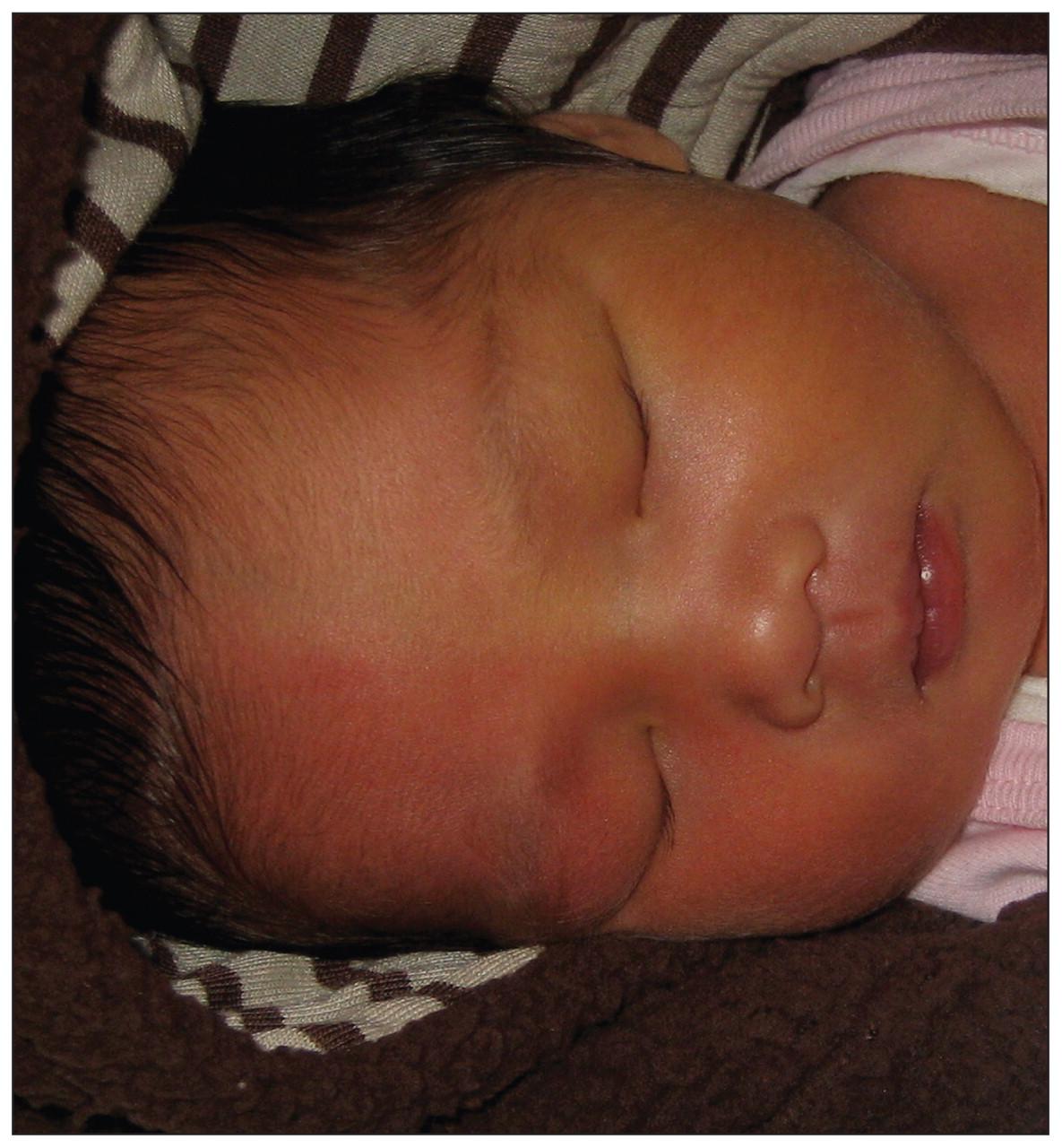 Image result for harlequin color change baby