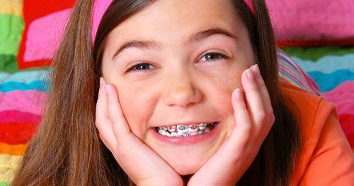 Niềng răng hô trong bao lâu để hết thô vẩu hoàn toàn?