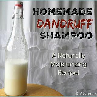 Natural Remedies for Dandruff.