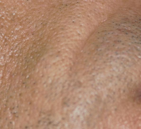 Moedervlek verwijderen met laser. Huidverbetering Dr. Charlotte Nelissen
