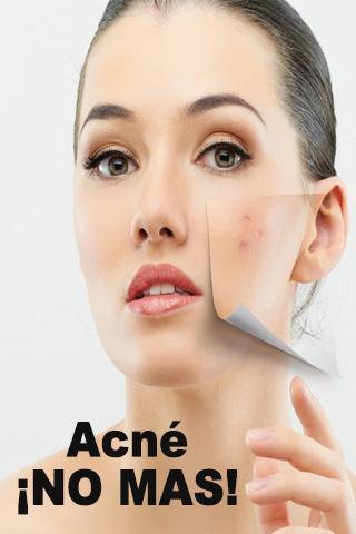 Acne No Mas