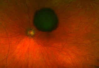 Photo: What is this? Clue #2. This is the fellow eye.