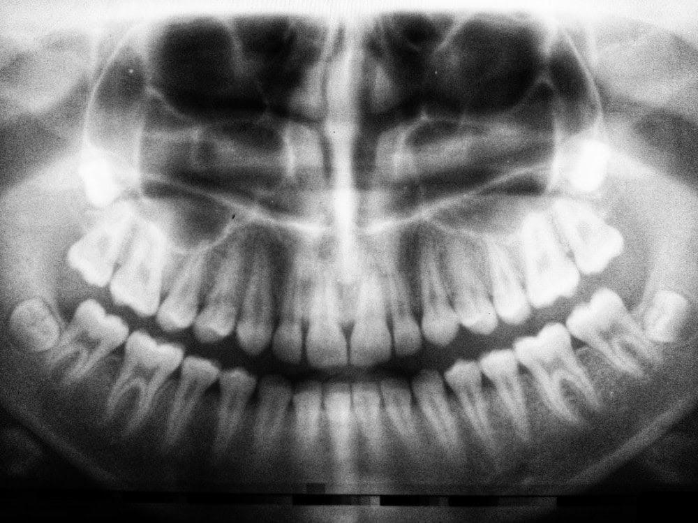 skeleton with cigarette in between its teeth